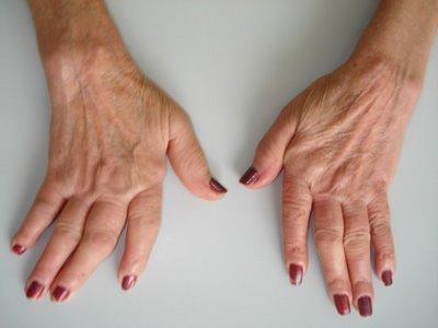 Cure per l'artrite reumatoide