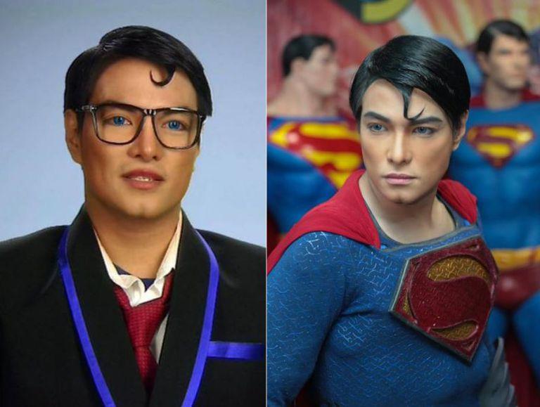 Un uomo subisce 23 interventi chirurgici per diventare come Superman