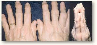 Come eliminare il dolore dell'artrite dalle dita