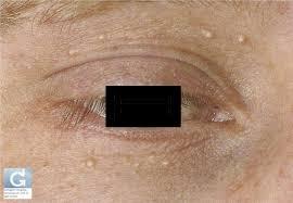 Pallina bianca sull'occhio: la dottoressa la rimuove tagliandola