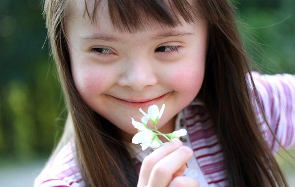 Una bimba affetta da sindrome di down