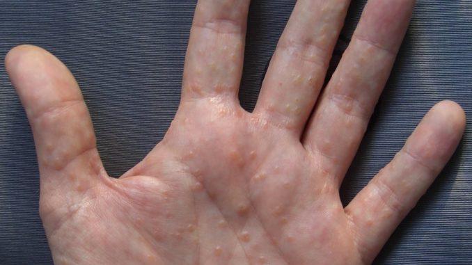 Prurito alle mani e ai piedi: significato