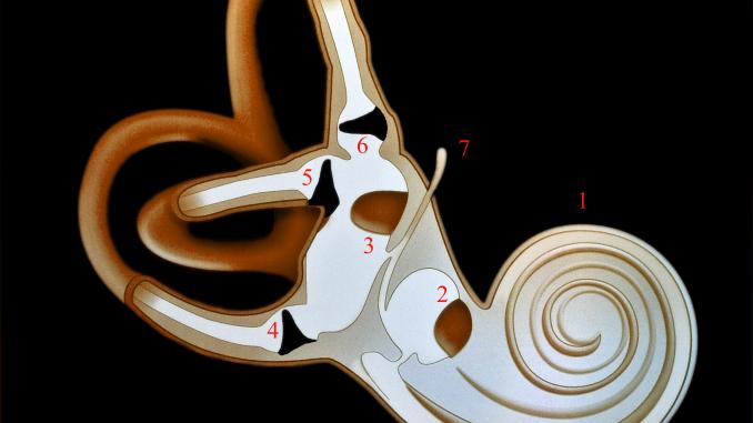 Artrosi Cervicale e Sindrome di Meniere