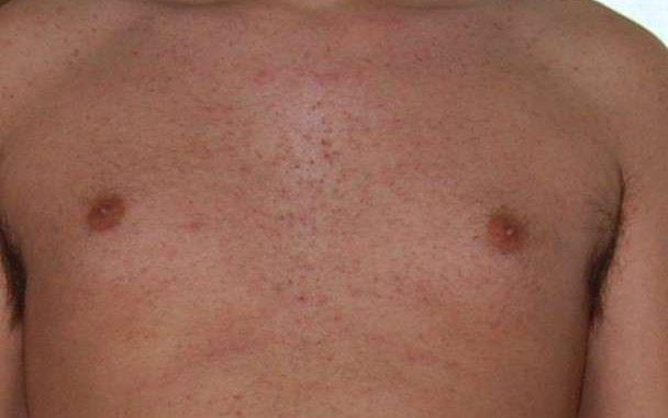 follicolite da depilazione: cura e rimedi naturali