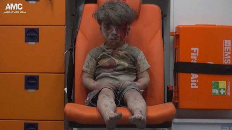 Immagini di bambini feriti ad Aleppo che diventano il simbolo della guerra e della tragedia