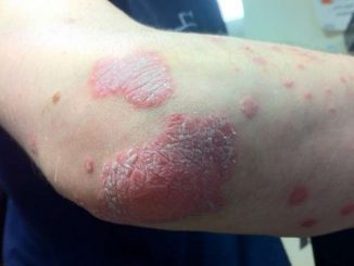 La bioterapia: un nuovo rimedio per curare la psoriasi