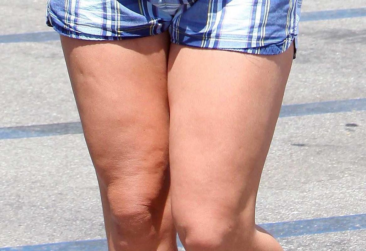 Accumuli di grasso sulle ginocchia: rimedi e consigli ...