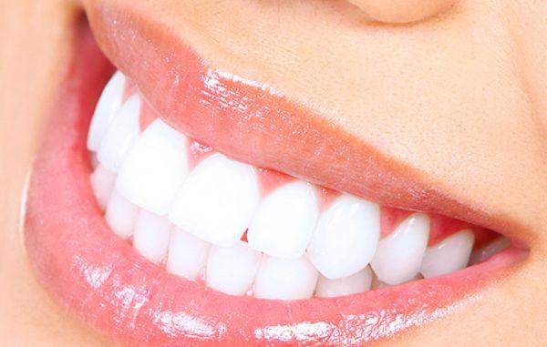 I rimedi naturali per denti bianchi e sani