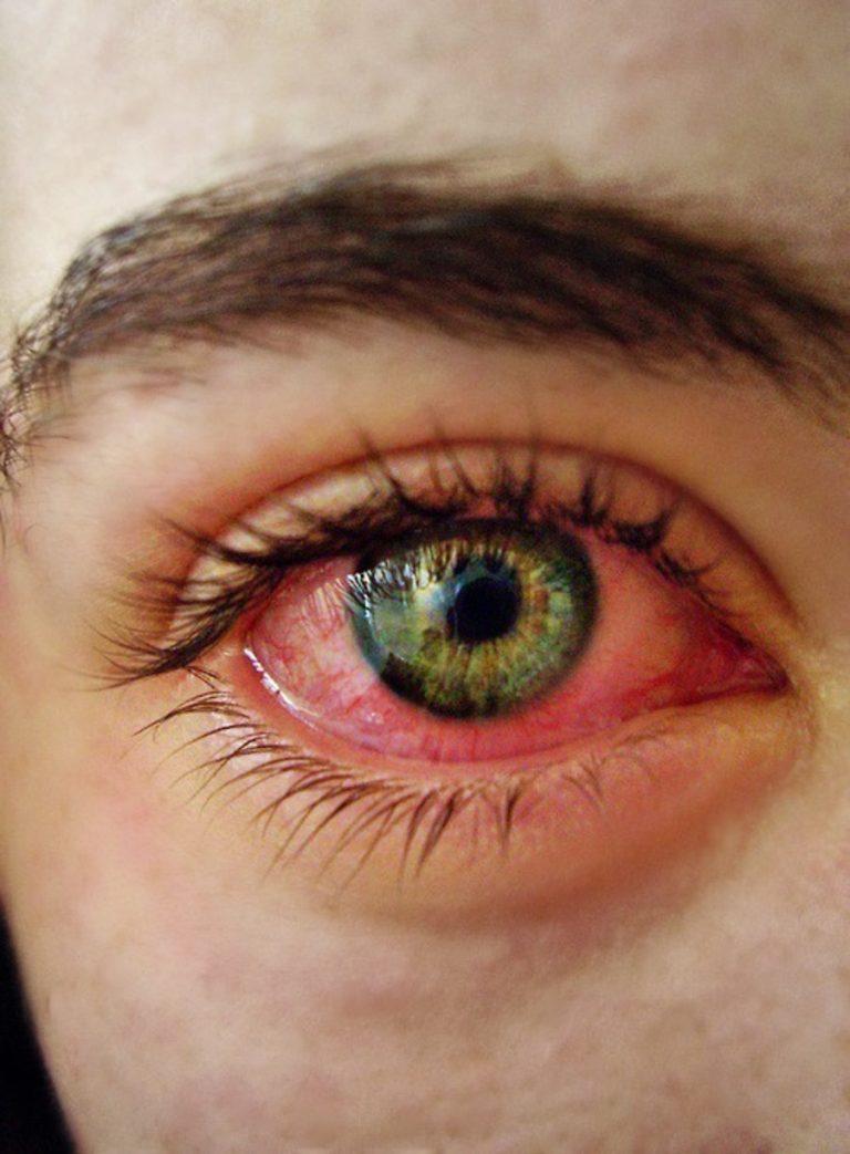12f504086d Occhi arrossati: tutte le cause che li provocano