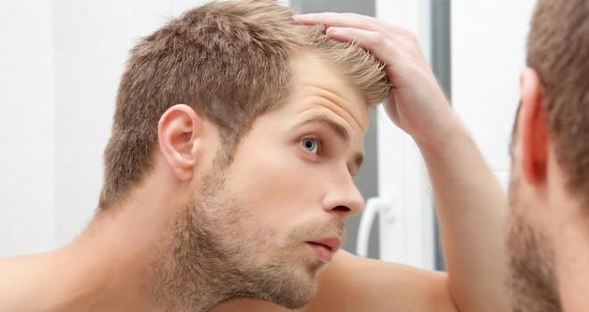Alopecia seborroica e minoxidil: risultati, effetti collaterali, prezzi