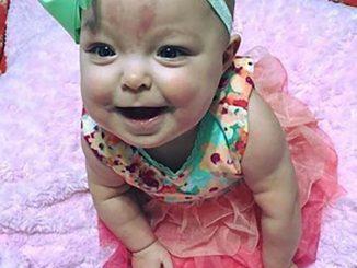 Storie straordinarie, la bambina nata con una lingua da adulto