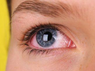 occhi arrossati cause e rimedi