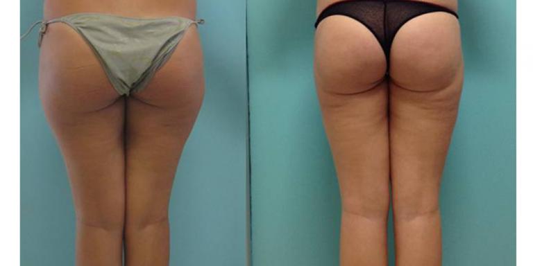 Accumulo di grasso interno ginocchio: rimedi e cause