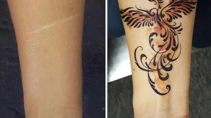 Come coprire una cicatrice con un tatuaggio