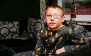Bimbo ricoverato per mal di stomaco: operato d'urgenza per un raro tumore al cervello