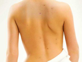Punti neri schiena: come eliminarli naturalmente