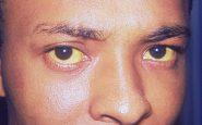 ittero-visibile-negli-occhi