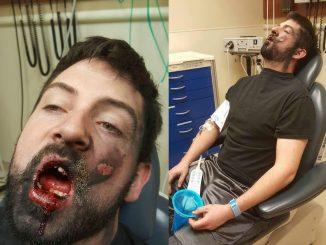 Sigaretta elettronica esplode in faccia a un ragazzo. Tutti i rischi