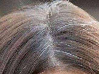 Capelli bianchi: come tornare al colore naturale senza tinta