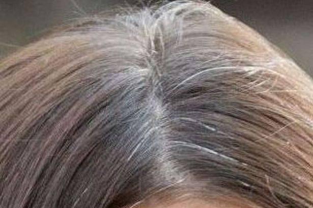 Capelli bianchi come tornare al colore naturale