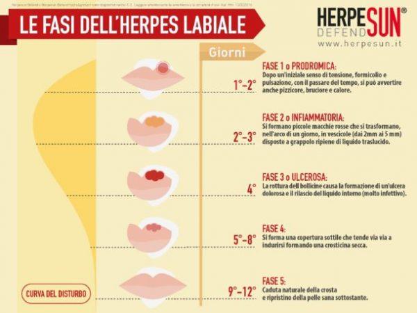 fasi dell'herpes labiale