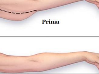 Come eliminare il grasso delle braccia: metodi semplici
