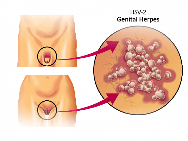 Herpes genitale: cause, sintomi e conseguenze
