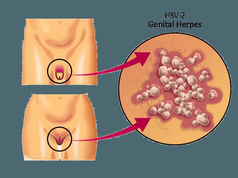 Pilz-Infektion am Penis - Erkennen, therapieren und vorbeugen