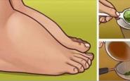 Piedi e caviglie gonfi: cause e rimedi semplici