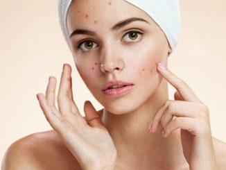 Cinque cose che non sai dell'acne
