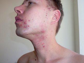 Perché l'acne è legata agli ormoni
