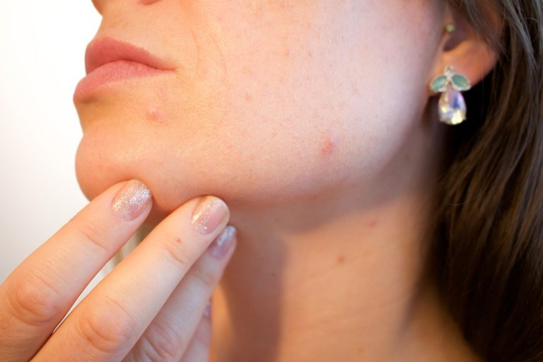 acne a 40 anni
