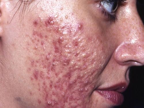 Come prevenire lapparizione di posti sulla faccia in adolescenti