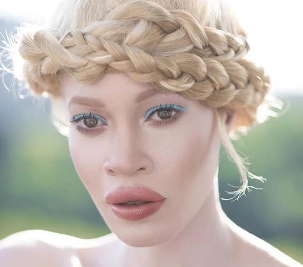 Diandra: la modella albina che sta facendo impazzire il web