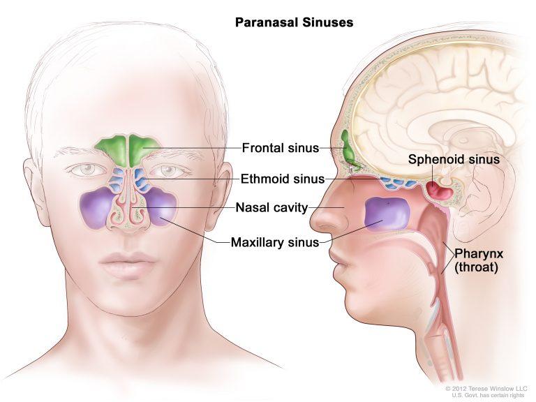 Sinusite: cinque segni per riconoscerla