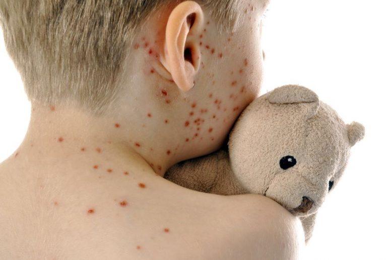 Rosolia congenita: cause e sintomi