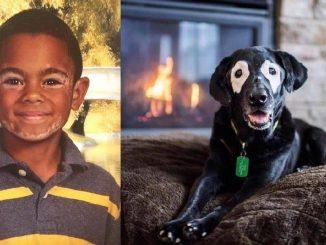 L'amicizia tra un cane e un bimbo affetti dalla stessa patologia
