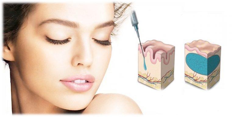 acido ialuronico medicina estetica antirughe 768x384