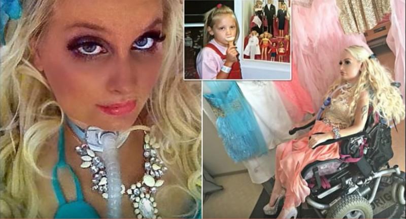 Ragazza paraplegica vive e si veste come Barbie