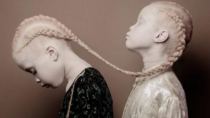 Le gemelle diventate modelle grazie ad alcuni meravigliosi scatti