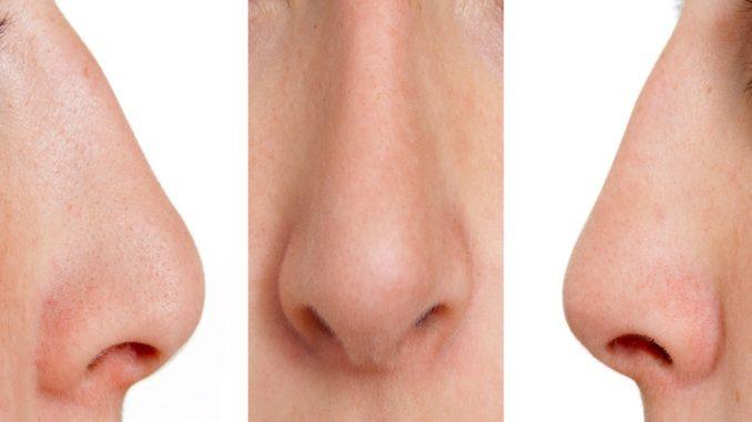 Punti neri sul naso: la ricetta per liberarsene
