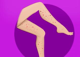 Vitamine e allergia