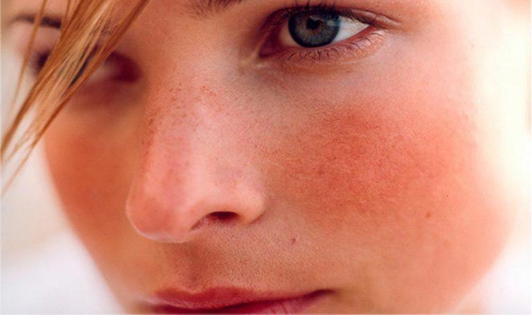 Acne rosacea: cause, rimedi, prodotti da utilizzare