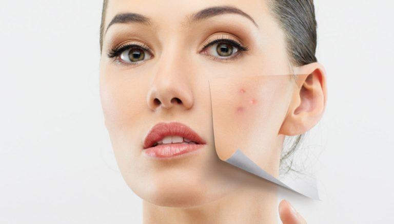Bagno Di Vapore Brufoli : Brufoli e acne come eliminarli con soluzioni naturali