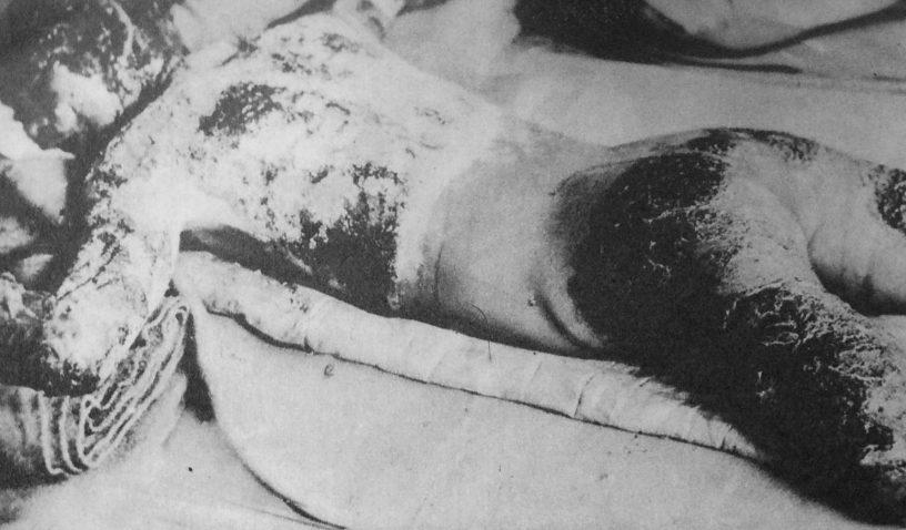 Victim_of_Hiroshima_atomic_bombing_1