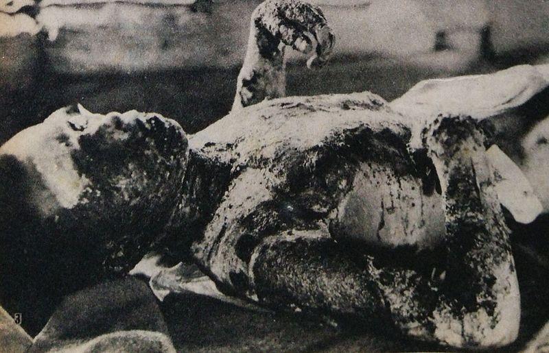 Victim_of_Hiroshima_atomic_bombing_3