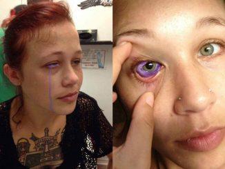 La ragazza con l'inchiostro nell'occhio