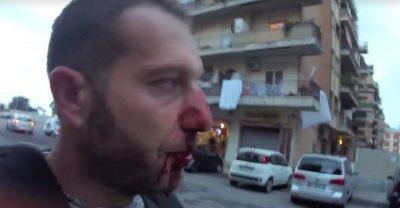 Ostia, Spada aggredisce troupe Rai: naso rotto al giornalista