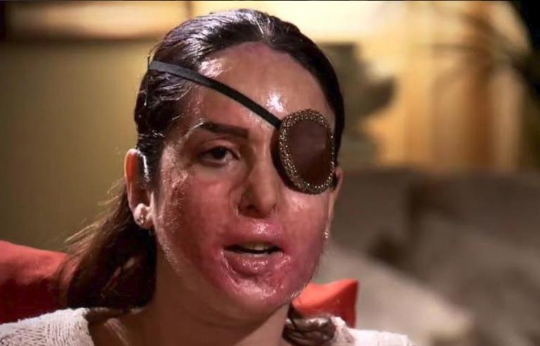 Gessica Notaro su Facebook: il primo scatto dopo l'aggressione