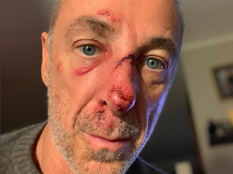 linus ferito naso rotto punti